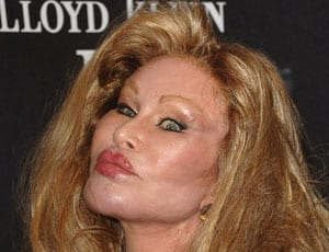 Jocelyn Wildenstein FI 1