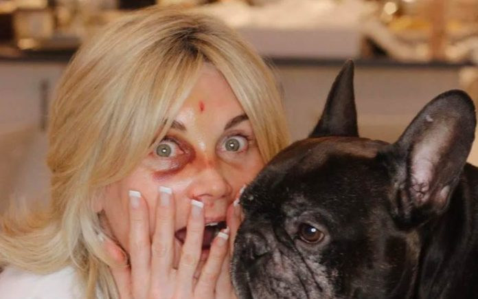 Anth' Flips – Anthea Turner injures herself whilst miming Shania Twain – Anthea Turner moves from swinging to flipping – and does so disastrously.
